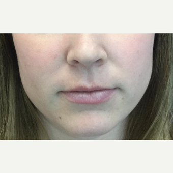 25-34 year old woman treated with Lip Augmentation before 3583520