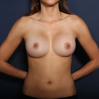 25-34 year old woman treated with Breast Augmentation (set 1 of 2) after 2976555