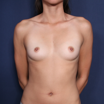 25-34 year old woman treated with Breast Augmentation (set 1 of 2) before 2976555