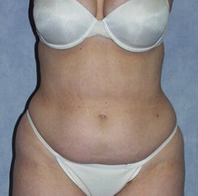 Tummy Tuck before 1514673