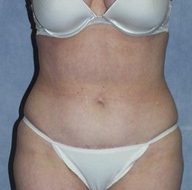 Tummy Tuck after 1514673