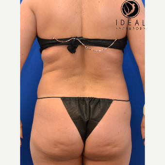 45-54 year old woman treated with Butt Lift before 2737338