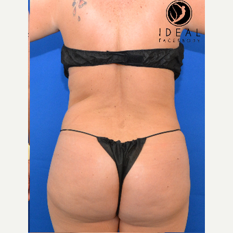 45-54 year old woman treated with Butt Lift after 2737338