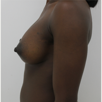 25-34 year old woman treated with Breast Augmentation after 3060229