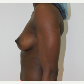 25-34 year old woman treated with Breast Augmentation before 3060229