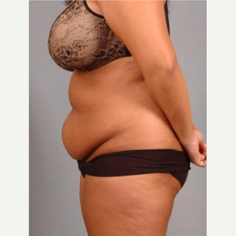 35-44 year old woman treated with Vaser Liposuction before 2479294