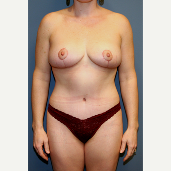 35-44 year old woman treated with Mommy Makeover after 3475419