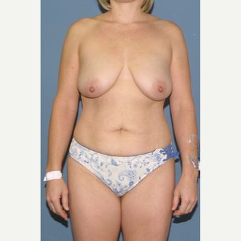 35-44 year old woman treated with Mommy Makeover before 3475419