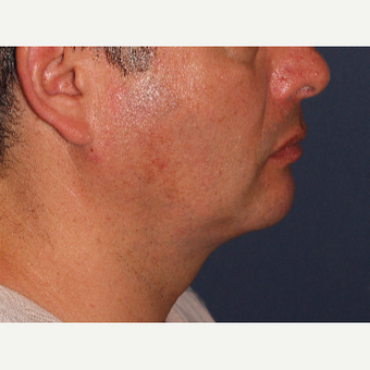 35-44 year old man treated with ThermiTight after 3138904