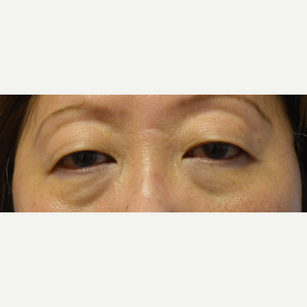 45-54 year old woman treated with Asian Eyelid Surgery before 3098303