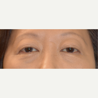 45-54 year old woman treated with Asian Eyelid Surgery after 3098303