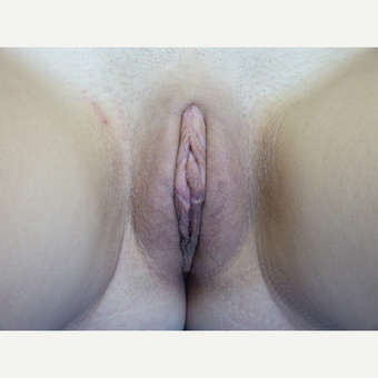18-24 year old woman treated with Labiaplasty after 3575479