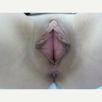 18-24 year old woman treated with Labiaplasty before 3575479