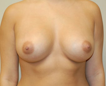 Silicone Breast Augmenatio after 274540