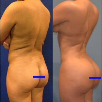 25-34 year old woman treated with Brazilian Butt Lift before 2291027