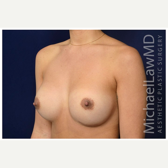 25-34 year old woman treated with Breast Implant Revision after 3175612