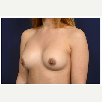 25-34 year old woman treated with Breast Implant Revision before 3175612
