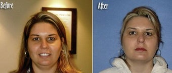 Mesotherapy to reduce double chin before 6516