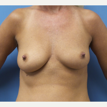 35-44 year old woman treated with Breast Augmentation before 3685227