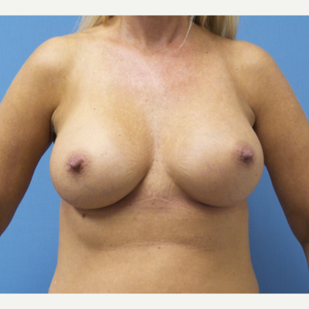 35-44 year old woman treated with Breast Augmentation after 3685227