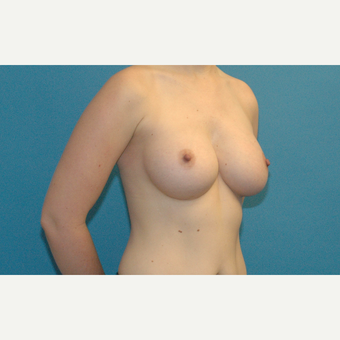 32 year old woman treated with Breast Implants after 3218977
