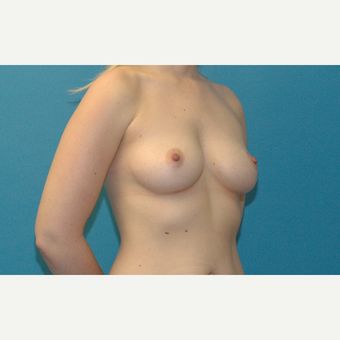 32 year old woman treated with Breast Implants before 3218977