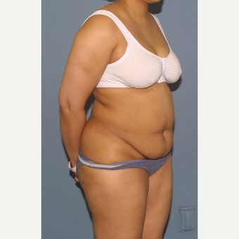 45-54 year old woman treated with Tummy Tuck before 3565857