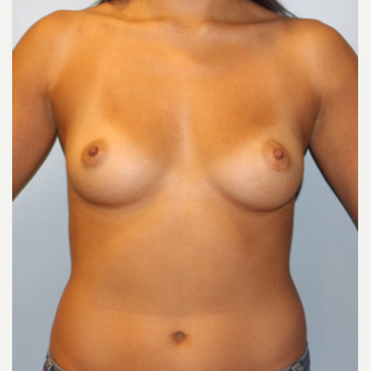 25-34 year old woman treated with Breast Augmentation before 3810063