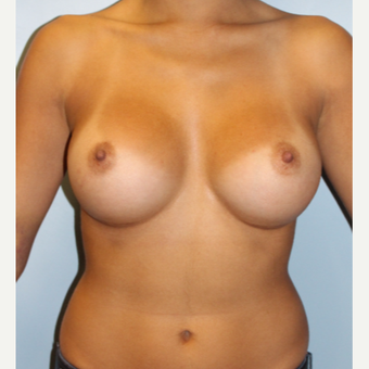25-34 year old woman treated with Breast Augmentation after 3810063