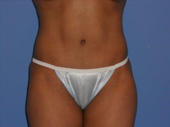 Tummy Tuck after 967702