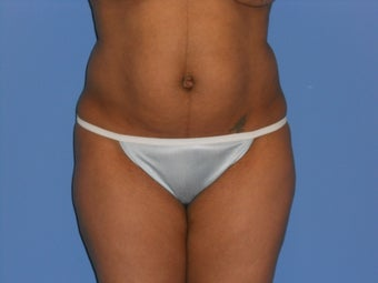 Tummy Tuck before 967702