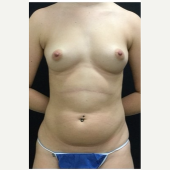 25-34 year old woman treated with Breast Augmentation before 3219287