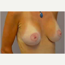Breast Lift with Implants after 3058202