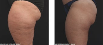 Radiofrequency with micro-needle array is very effective for skin tightening and cellulite improvement on the thighs.  before 1489704