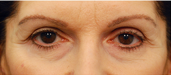 Eye Bag Surgery before 886848