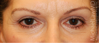 Eye Bag Surgery after 886848