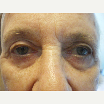 75 and up year old woman treated with Restylane before 3060119