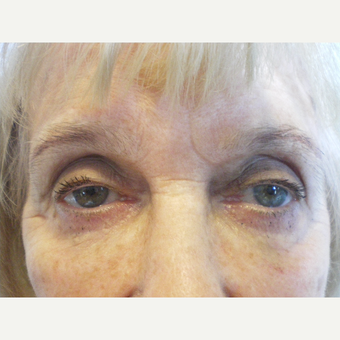 75 and up year old woman treated with Restylane after 3060119
