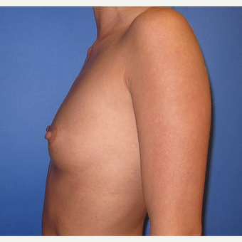 25-34 year old woman treated with Breast Implants (R. 295cc, L. 275cc)