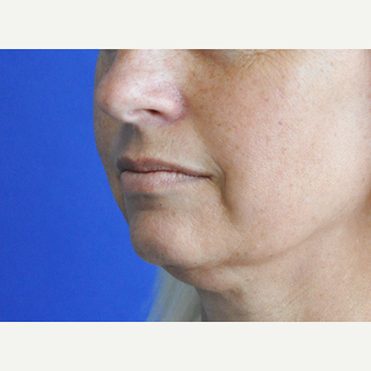 45-54 year old woman treated with Lip Augmentation before 3240211