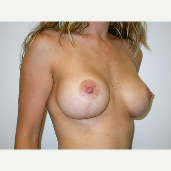 25-34 year old woman treated with Breast Lift with Implants after 3738030