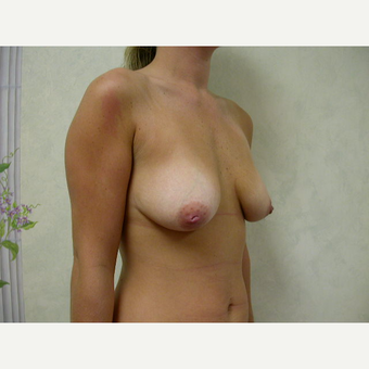 25-34 year old woman treated with Breast Lift with Implants before 3738030