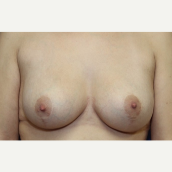 28 year old woman with a Breast Augmentation after 3103942