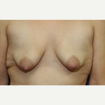 28 year old woman with a Breast Augmentation before 3103942