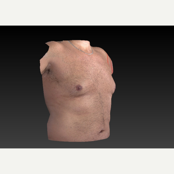 45-54 year old man treated with Smart Lipo before 3804279