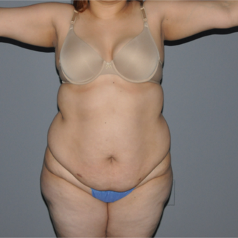25-34 year old woman treated with Tummy Tuck before 3069869