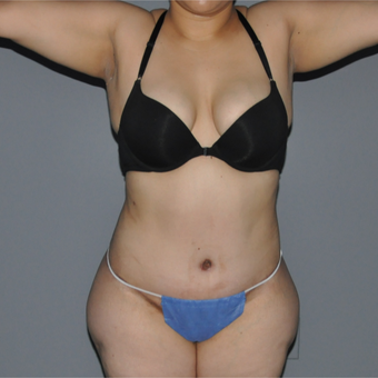 25-34 year old woman treated with Tummy Tuck after 3069869