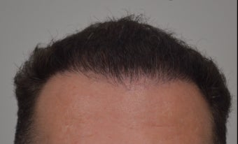 35-44 year old man treated with FUE Hair Transplant after 3550910