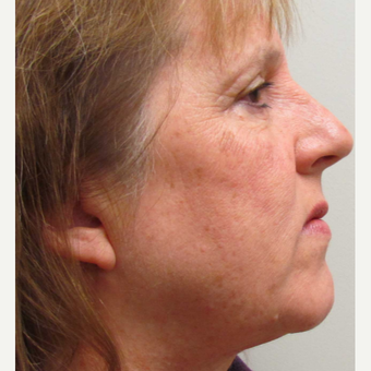 Face IPL treatment for Sun Damage for this 57 Year Old Woman before 3104680
