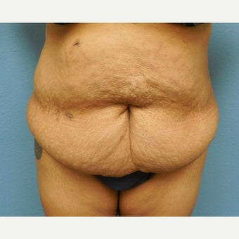 35-44 year old woman treated with Tummy Tuck before 1574866